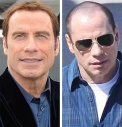 John Travolta Hair Transplant   Hair Transplant Dubai   Scoop.it