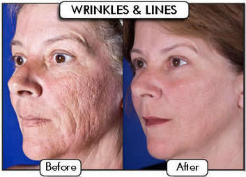 Perfect Skin with Laser Skincare - Healthy Skin Solutions | Skin Care | Scoop.it