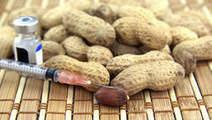 Zo (on)gevaarlijk zijn voedselallergieën echt | Macusa | Scoop.it
