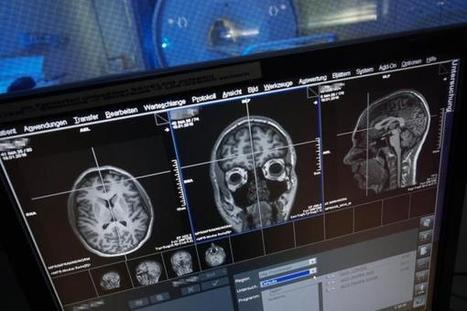 Study: Both sides of the brain process numbers | Beyond the Stacks | Scoop.it