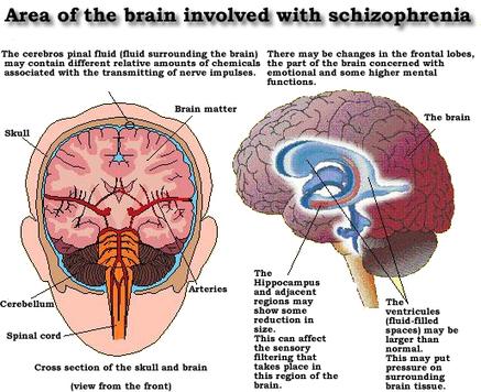 What Causes Schizophrenia? – HealthLob.com | ps4-5 | Scoop.it