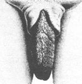 "Elongated labia - Wikipedia, the free encyclopedia | Saartje Baartman, aka ""Hottentot Venus"" | Scoop.it"
