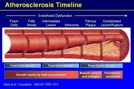 Unpleasant Facts About Atherosclerotic Arterial Disease in US & World | Heart and Vascular Health | Scoop.it
