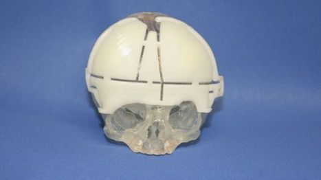 Surgeons reconstruct baby's skull with 3D printing technology | Health IT and mHealth News | Scoop.it