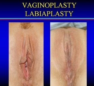 Vaginoplasty, And Labiaplasty For Sexual Satisfaction | Health Articles | Scoop.it