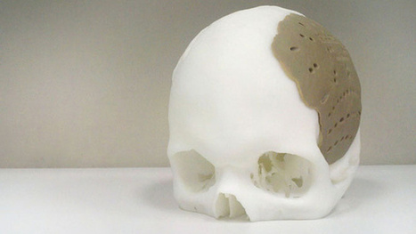 Dude Has 75 Percent of His Skull Replaced By 3D-Printed Replica | Our Weird & Wonderful World | Scoop.it