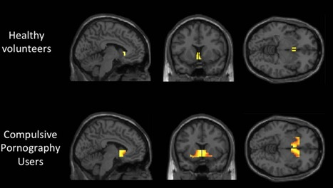 Pornography addiction leads to same brain activity as alcoholism or drug abuse, study shows | Drugs, Society, Human Rights & Justice | Scoop.it
