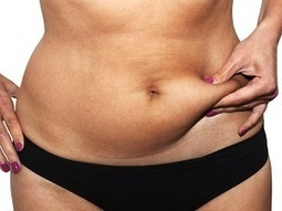 After Liposuction, What Happens to Skin? - The Prestige Institute | Plastic Surgery | Scoop.it
