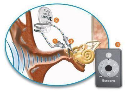 Huntsville doctor offers invisible, waterproof hearing aid - The Birmingham News - al.com   Hearing News   Scoop.it