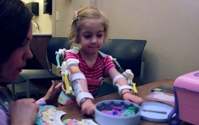 3D Printing Tech Gives Disabled Girl Custom 'Magic Arms' | Gadgets, Science & Technology | shubush healthwear | Scoop.it