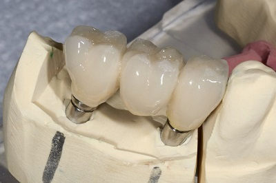 The Process of Getting Dental Implants from a Bala Cynwyd Professional | Dr. Anthony Farole, D.M.D. | Scoop.it