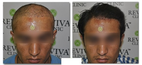 FUE Hair Transplant in India | FUE Hair Transplant in India | Scoop.it
