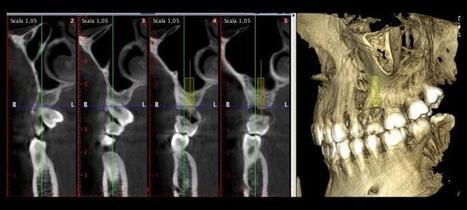 [Clinical blog] Sostituzione implantare di un residuo elemento deciduo - Dr GUIDA ANTONIO - @osteocom | Dental Implant and Bone Regeneration | Scoop.it