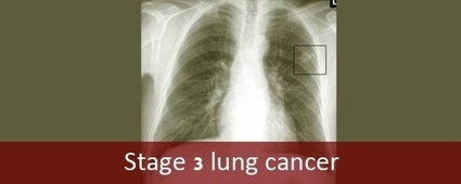 Stage 3 lung cancer | Lung Cancer Stages | Scoop.it