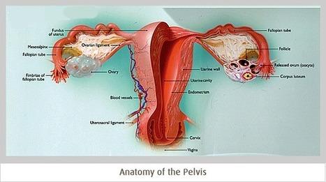Fibroids - CIGS | Conditions | Scoop.it