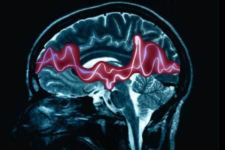 Split Brain Behavioral Experiments | Psychology and Brain News | Scoop.it