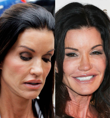 Janice Dickinson Plastic Surgery - Looks incredibly Young at this age | Celebrity Plastic Surgery | Scoop.it