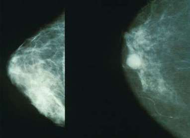 A blood test for early detection of breast cancer metastasis | Co-creation in health | Scoop.it