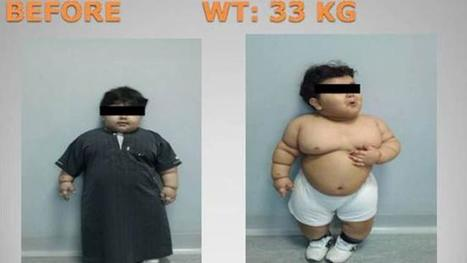 Medical science gone mad! In Saudi-Arabia, Surgeons reduce  an obese-two-year-old 's stomach to  the size and shape of a banana. | Interesting Reading to learn English -intermediate - advanced (B1, B2, C1,) | Scoop.it