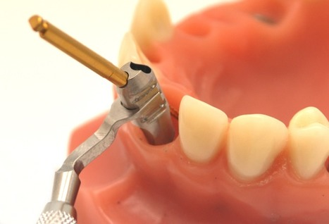 A new surgical guide for immediate implant placement in the post extraction socket | Dental Health News | Scoop.it