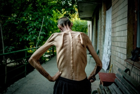 The TB epidemic in Ukraine | Photojournalist: Maxim Dondyuk | PHOTOGRAPHERS | Scoop.it