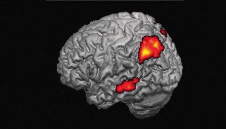 L'ironie sous le spectre de l'IRM | Neurosciences, la science qui avance | Scoop.it