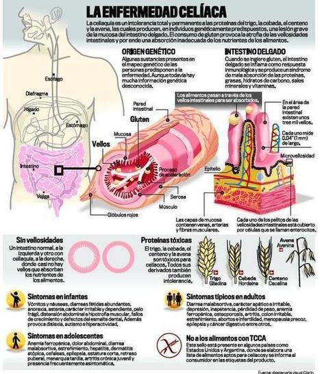 La enfermedad Celiaca | Gluten free! | Scoop.it