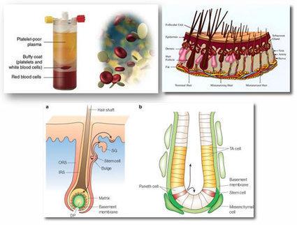 Doctors Studio » Rengenerative Hair Growth | Doctors Studio | Scoop.it