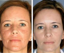 Dermabliss Skin Rejuvenation Therapy   IPL Skin Rejuvenation Springwood   Scoop.it