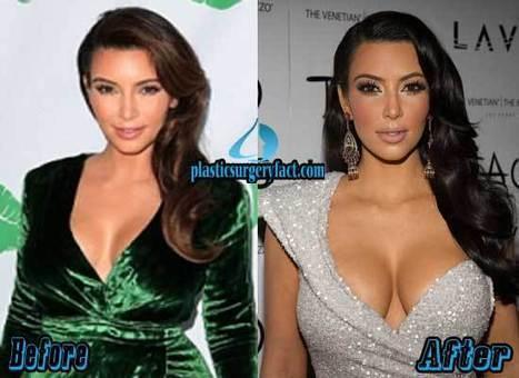 Kim Kardashian Plastic Surgery Before and After Photos — Plastic Surgery Facts | Celebrity Plastic Surgery News | Scoop.it