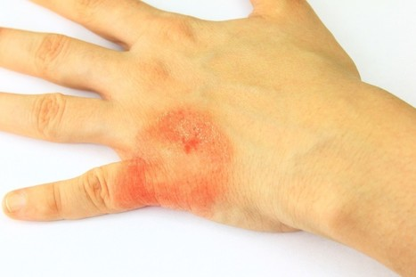 Kent Urgent Care: Ways to Deal with Common Camp Injuries   Ushealthworkskent   Scoop.it