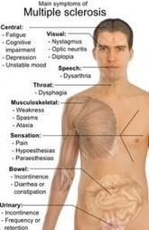 Multiple Sclerosis Symptoms | Homeostasis | Scoop.it