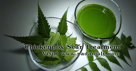 Treatment for Acnes, Itching, Sunburn, Chickenpox Scar, Diabetic Foot Ulcers, Skin Rashes, Dry Skin | Padanjaly Skin Clinic | herbal treatment for keloids | Scoop.it
