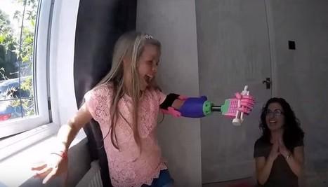 Une jeune fille amputée découvre avec joie son nouveau bras bionique imprimé en 3D   Chair et Métal - L'Humanité augmentée   Scoop.it