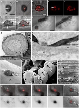 PLoS Pathogens: Sequential Delivery of Host-Induced Virulence Effectors by Appressoria and Intracellular Hyphae of the Phytopathogen Colletotrichum higginsianum | My papers | Scoop.it