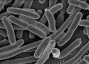 MicroBlog: E.coli-uitbraak in Frankrijk treft kinderen   Bacteriën   Scoop.it