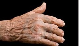Causes and Natural Remedies for Rheumatoid Arthritis, Osteoarthritis and Gout   Natural Anti-Inflammatory Benefits   Scoop.it