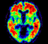 Piramal Imaging Announces EU Approval of NeuraCeq™ (florbetaben 18F) PET Imaging Beta Amyloid Plaques | Dementia | Scoop.it