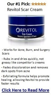 Best Acne Scar Treatment Products 2013   acne scar treatment   Scoop.it
