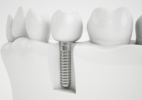 What are Dental Implants? | Facebook to make largest acquisition by buying WhatsApp messaging app for $19 billion | The Geeky Globe | Scoop.it