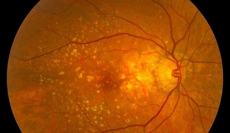 Best Kept Secrets to Prevent, Halt or Even Reverse Macular Degeneration | Ocular Studies | Scoop.it