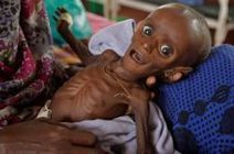 Thousands dying from malnutrition in Somalia - Tehran Times | Poverty, Hunger & Malnutrition | Scoop.it