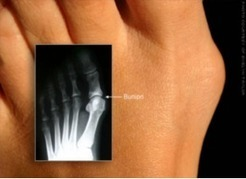 Bunions - Dr. Tammy Grancen BSc, DPM Vancouver BC   bunions vancouver   Scoop.it