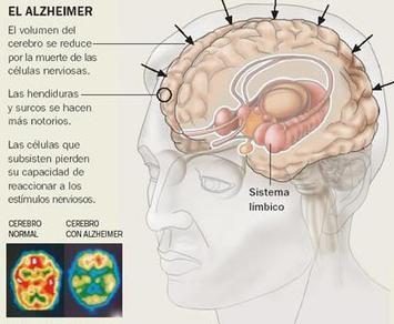 Manejo Odontológico del paciente Adulto Mayor con Alzheimer | Clínica Dental Gazel | Clínica Dental Gazel | Ocio y Salud | Scoop.it