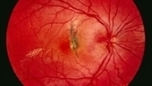 Appropriate eye care lacking for diabetes patients   Boost your patient loyalty!   Scoop.it