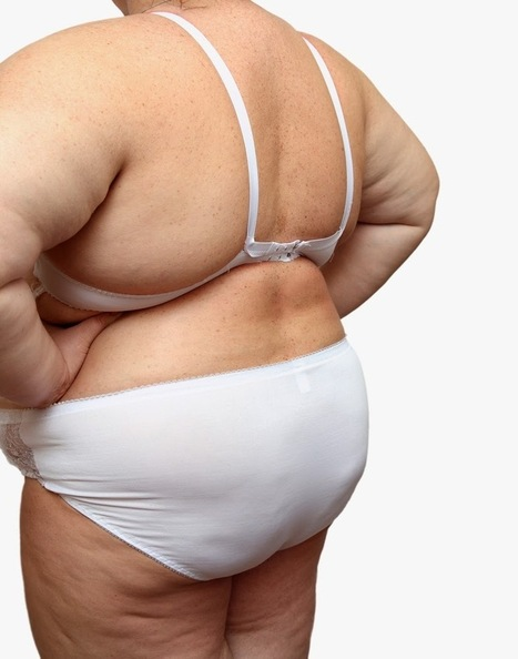 Are You a Candidate for Weight Loss Surgery? | Blog Posts | Scoop.it