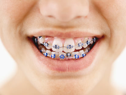 Braces Left on Boy's Teeth 11 Years | READ WHAT I READ | Scoop.it