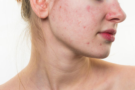 Top Rated Natural Remedies For Acne To Get Quick Relief | Health And LifeStyle | Scoop.it
