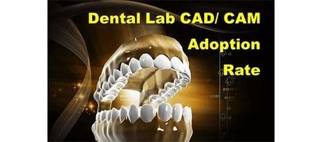 Dental Lab CAD/ CAM Digital Technology Adoption – Last One Loses?   Dental Industry   Scoop.it