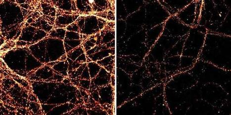 Neurons Constantly Rewrite Their DNA | Neuroscience News | DigitAG& journal | Scoop.it
